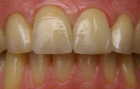 אחרי כתרי חרסינה בשיניים