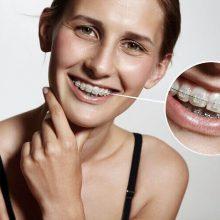 5 דרכים להשגת חיוך מושלם