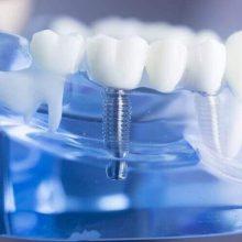 מה צריך לדעת לפני טיפול שתלים בשיניים?