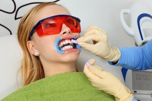 הלבנה ועיצוב קוסמטי לשיניים, ציפויי חרסינה ועוד