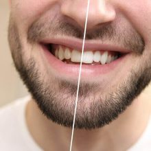 איך להלבין את השיניים שלכם?