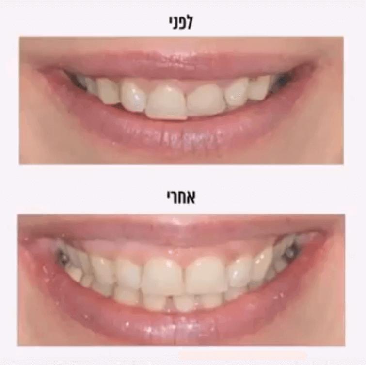 יישור שיניים לפני ואחרי הטיפול