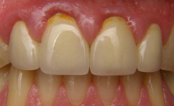לפני כתרי חרסינה בשיניים