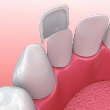 כל מה שרציתם לדעת על ציפוי חרסינה לשיניים