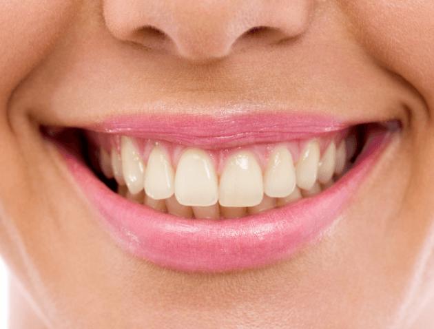 חיוך לפני הלבנת שיניים