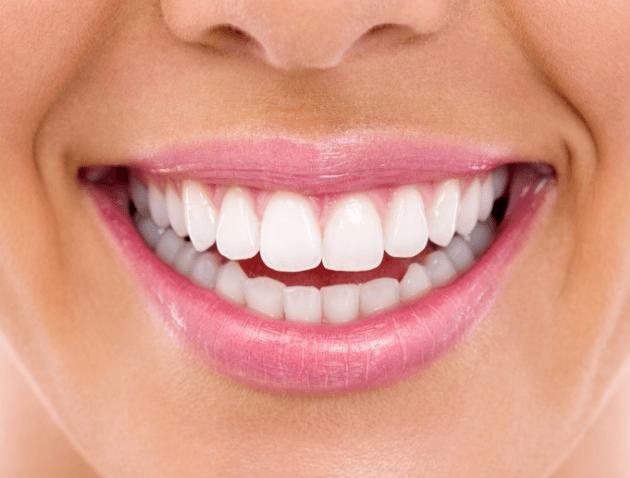 חיוך אחרי הלבנת שיניים
