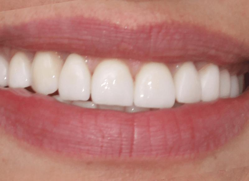 אחרי ציפוי שיניים במרפאת ד