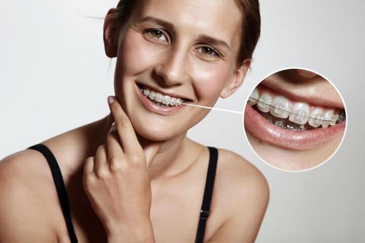 באיזה גיל מתחילים יישור שיניים?