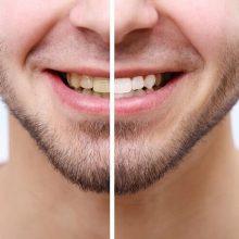 היסטוריית הלבנת שיניים
