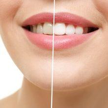 כמה עולה הלבנת שיניים?
