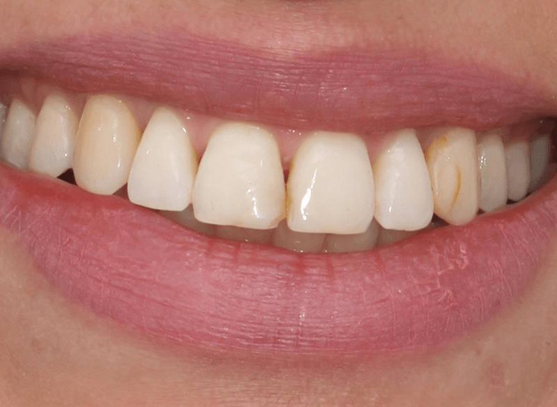 לפני ציפוי שיניים במרפאת ד