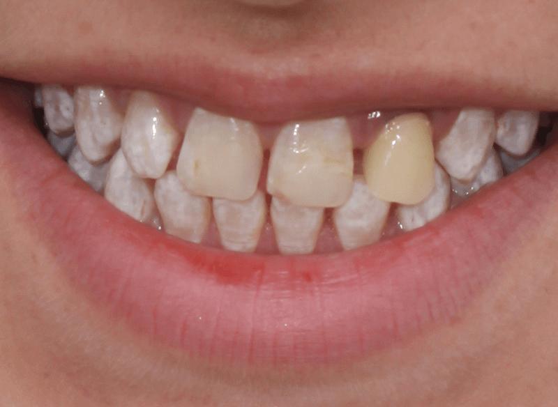 לפני שיקום הפה