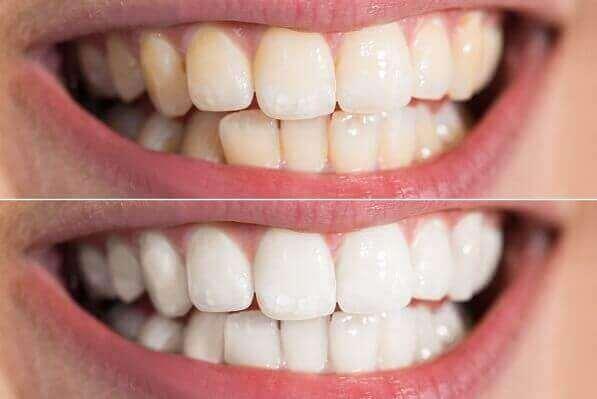 ציפויי חרסינה ללא השחזת שיניים