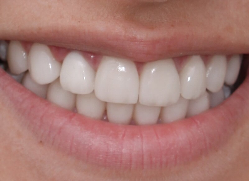 אחרי הלבנה ויישור שיניים
