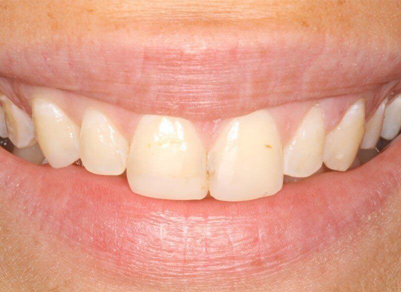 לפני ציפוי שיניים