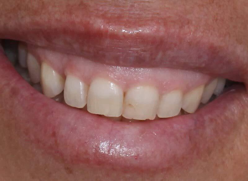 לפני טיפולי שיניים