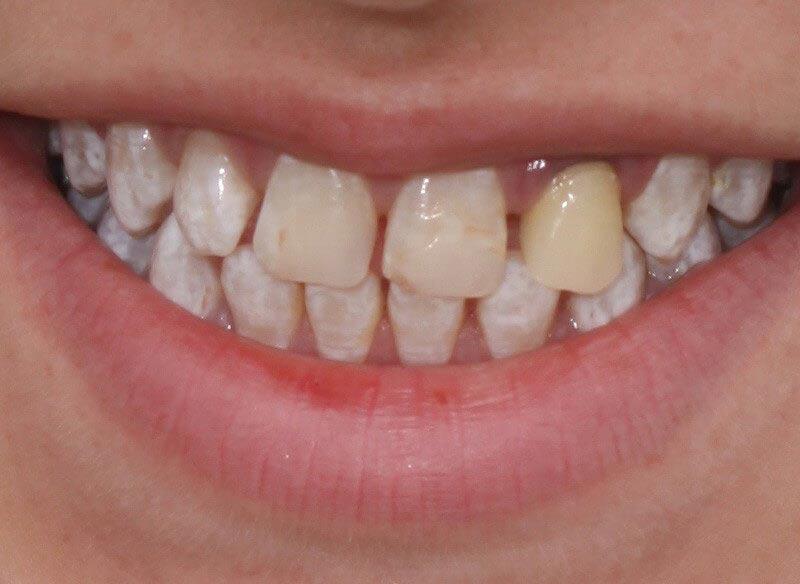 לפני הלבנה ויישור שיניים